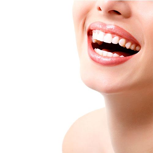 Carillas sin tocar los dientes